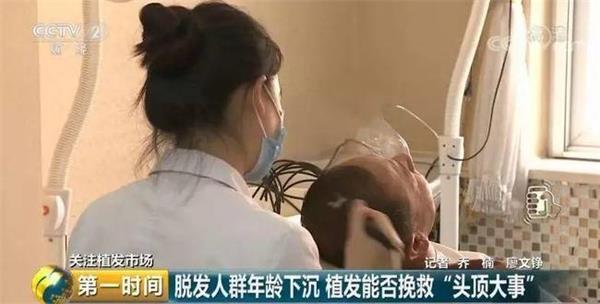 中国脱发人群超2.5亿 你有发际线危机吗?